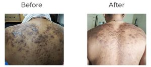 Keloids Treatment Herbal Treatment For Keloids Removal Of Keloid